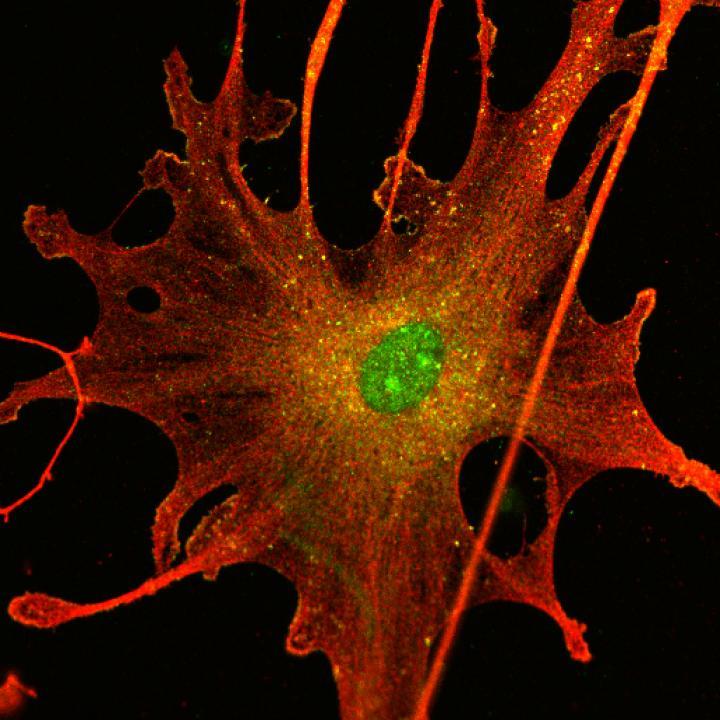 Schwannoma Tumor Cell