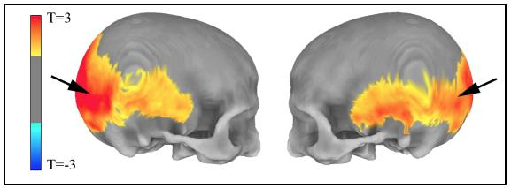 Skull Shape Changes Related to Neanderthal Gene Variants