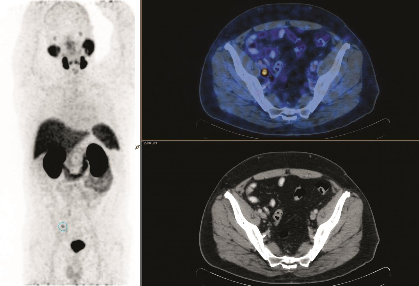 PSMA PET/CT Before-and-after Salvage Radiotherapy