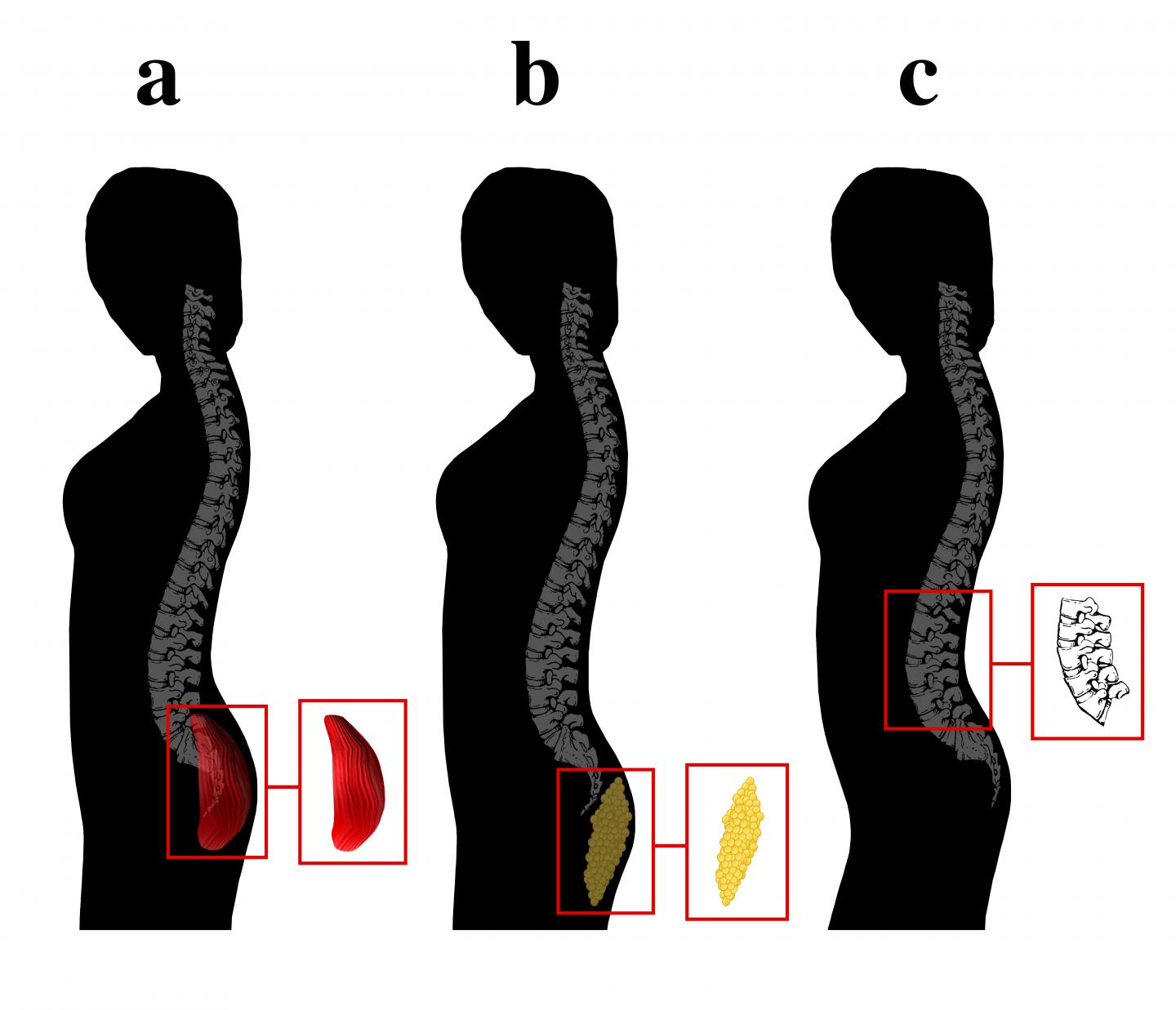 Gluteal Development Indicating Physical Fitness