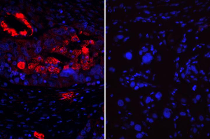 Ovarian Cancer Tumor Cells