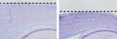 A New Mouse Model of Neurodegeneration