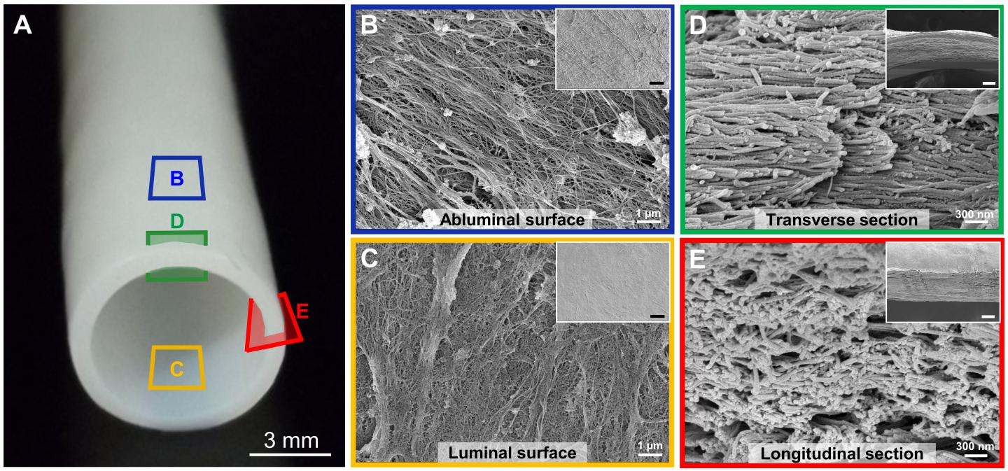Self-Sustaining, Bioengineered Blood Vessels Could Replace Damaged Vessels in Patients (1 of 2)