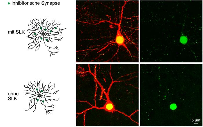Nervenzellen von Mäusen