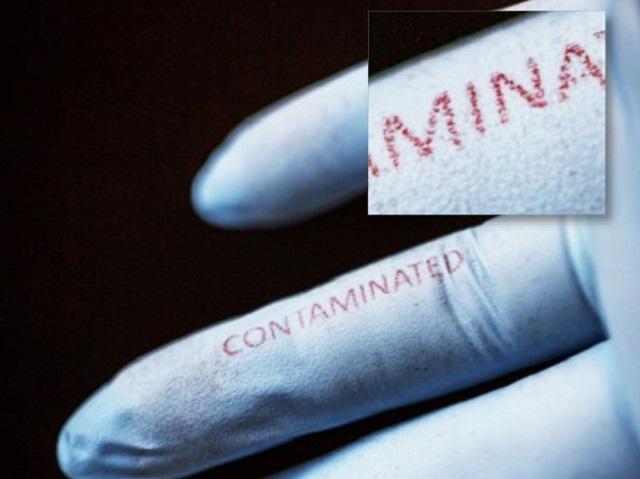 Biosensing Surgical Gloves