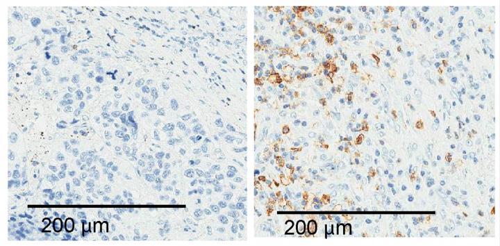 ALAL-1 Promotes Immune Evasion