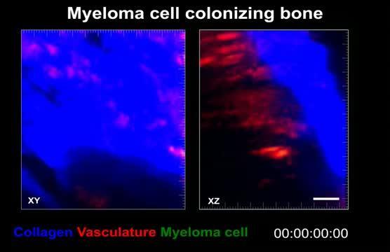 Tumor Cells Colonizing Bone
