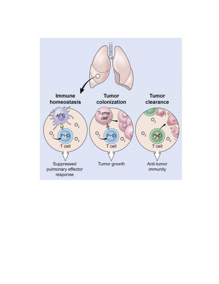 Graphical Description of Lung Metastasis Via PhD Cells