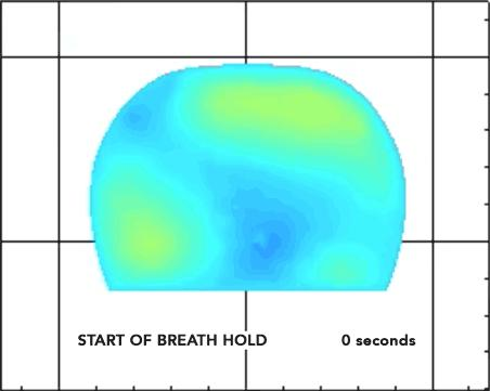 How the Breast Cancer Optical System Works