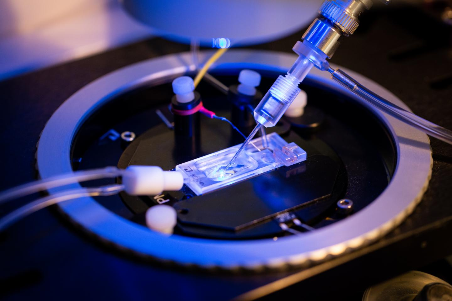 Patch Clamp Recording of Acid Activated Chloride Currents
