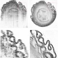 OCRT Images of Van Deferens