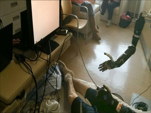 Prosthetic Arm Moves Individual 'fingers'