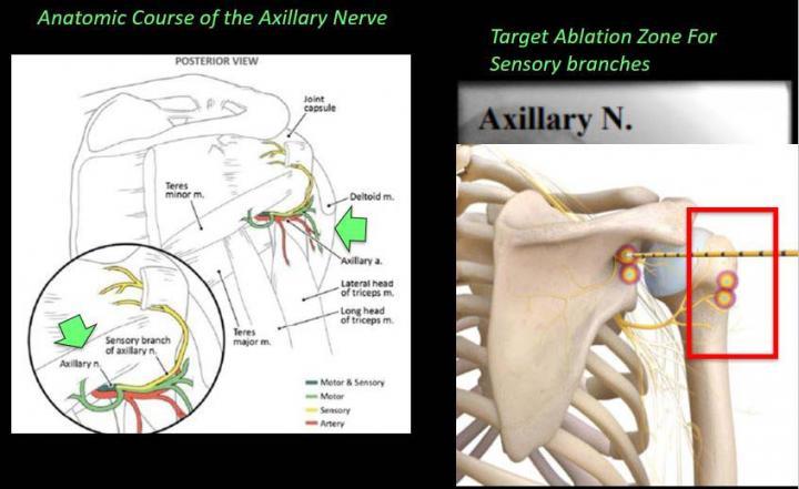 Novel Technique 'Stuns' Arthritis Pain in Shoulder and Hip