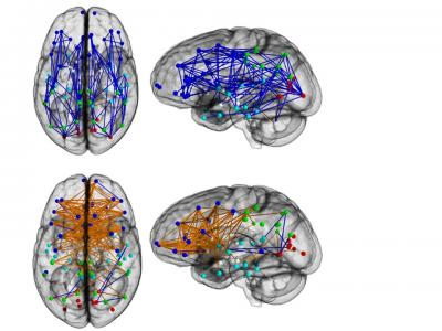 Sex Differences in Connectome of Human Brain