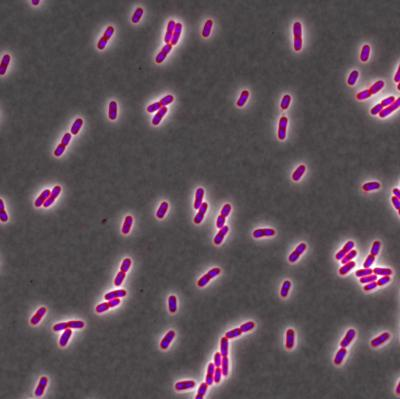 A Chemical that Is Supposed to Kill Bacteria Is Actually Making them Stronger