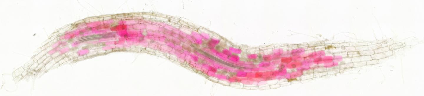 Cells of roots colonised by fungi turn red (3)