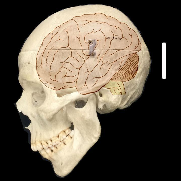 Human Brain Size
