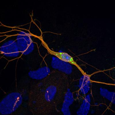 Lewy Body-like Inclusions in Mouse Neurons