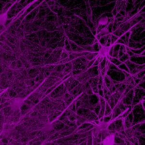 Brain wiring map