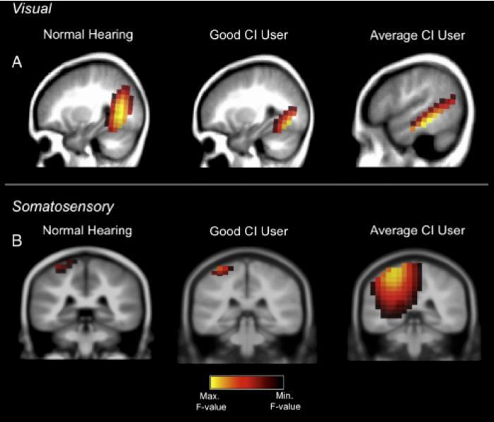 Cochlear Implant Users and Hearing Brain Centers
