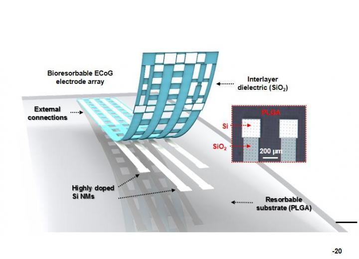 Next-Gen Electrode