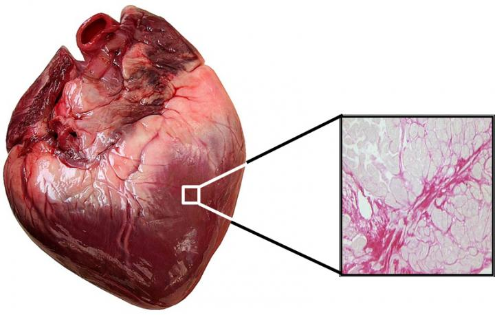 Myocardium Image of a Patient With Heart Failure
