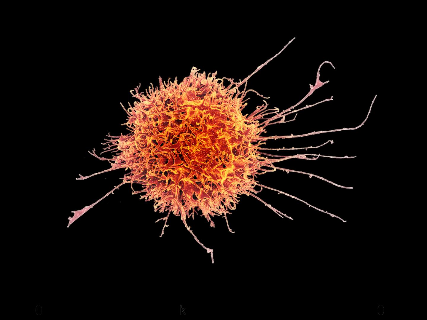 Scanning Electron Micrograph of a Human Natural Killer Cell, a Type of Immune Cell