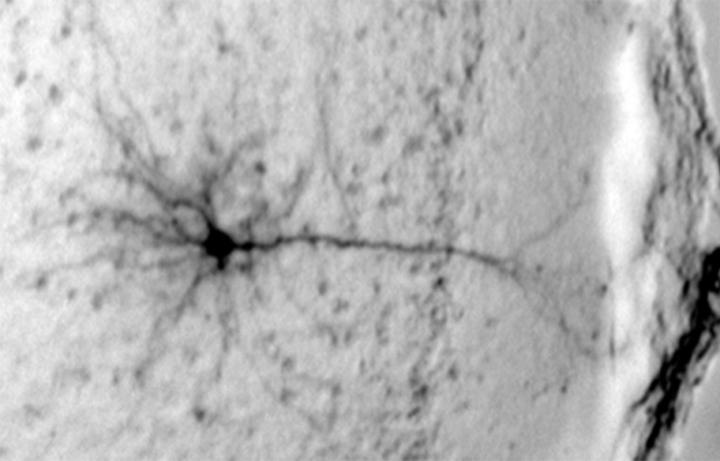 Neuron in the Prefrontal Cortex
