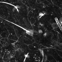 Nerve Cells Light Up As They Respond To Pain