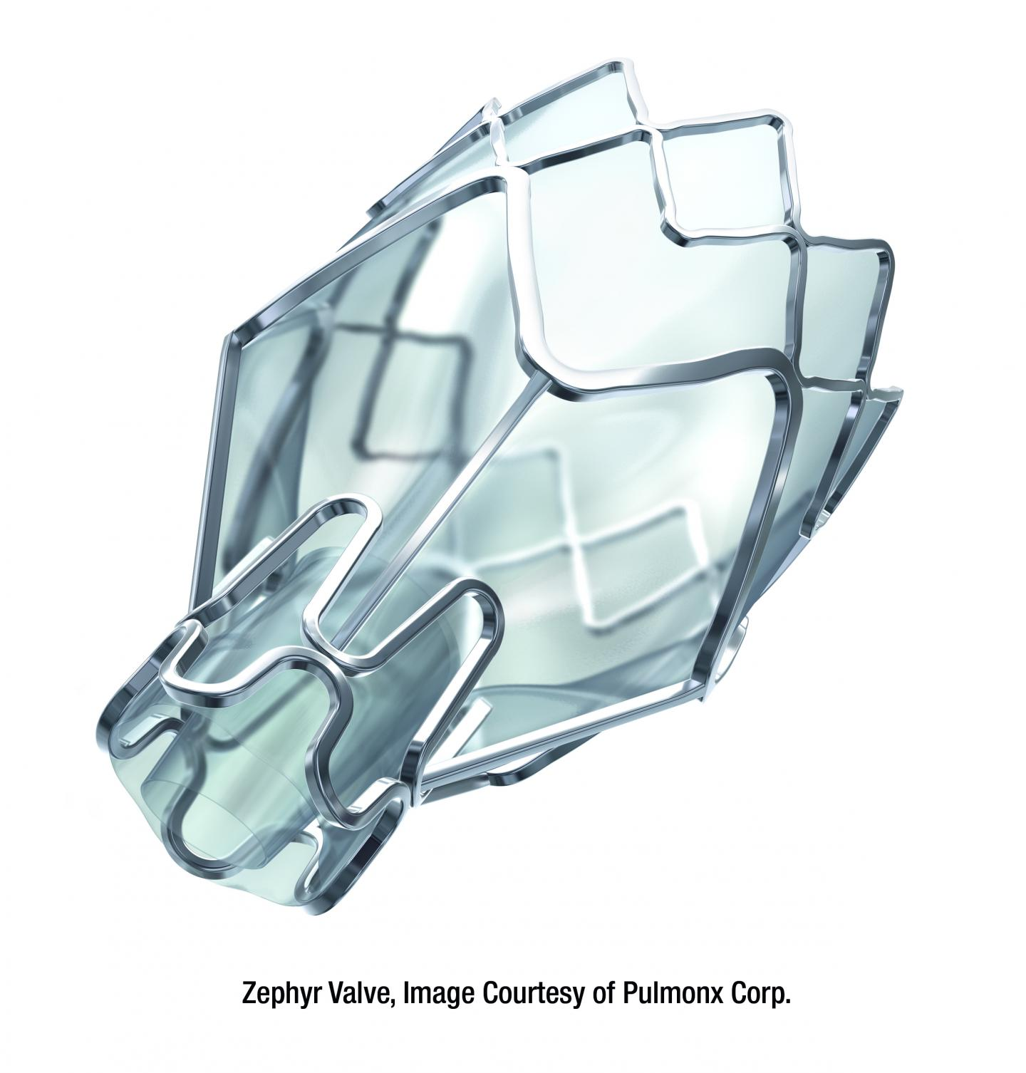 Zephyr Valve