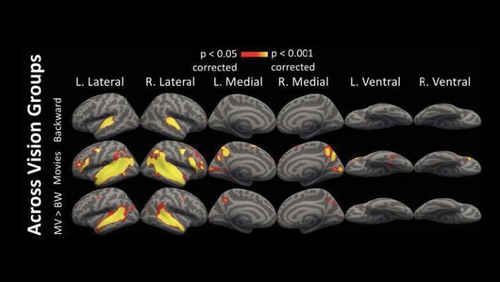 Visual Cortex Activation