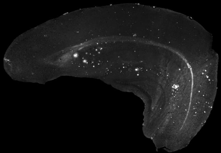Age-Related Deposits of Amyloid-Beta Protein in the Brain