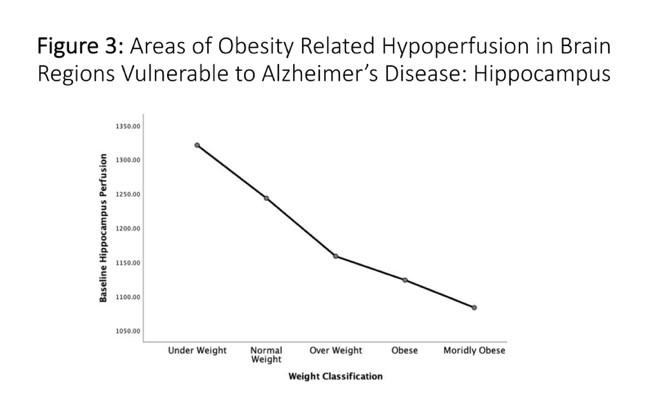 Areas of Obesity-Related Hypoperfusion in Brain Regions