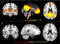 FMRI Analysis of Brain Network Activity for the Volunteers While at 'Rest'