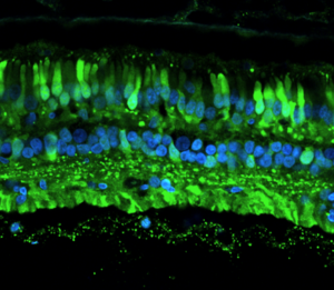 AAV-infected cells in the retina