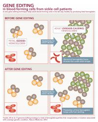 Sickle Cell Infographic