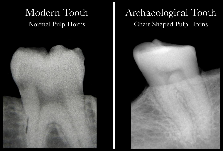 Teeth-comparison