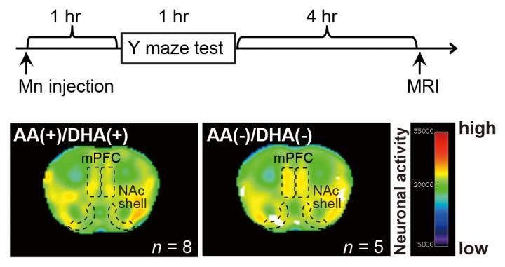 Macroscopic Neuronal Imaging in the AA(+)/DHA(+) and AA(?)/DHA(?) groups