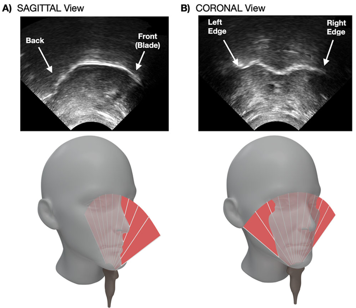 Real-time visual feedback of the tongue in sagittal (A) and coronal (B) plane