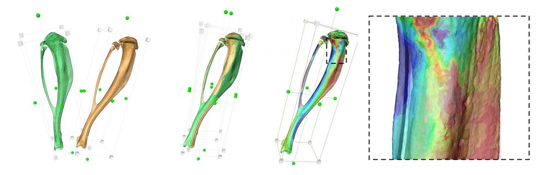 Structural Bone Changes