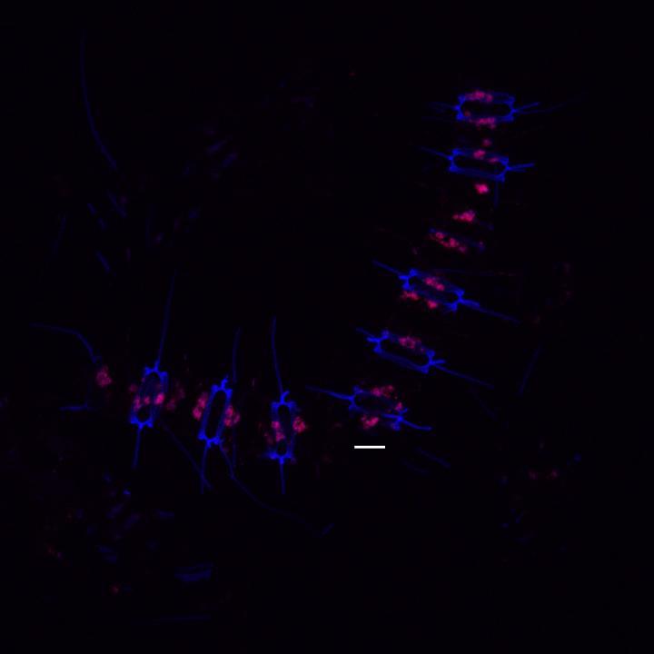 Chain of Diatom Cells